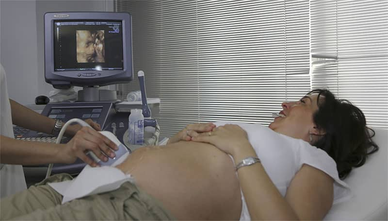 pregnant woman on ultrasound test