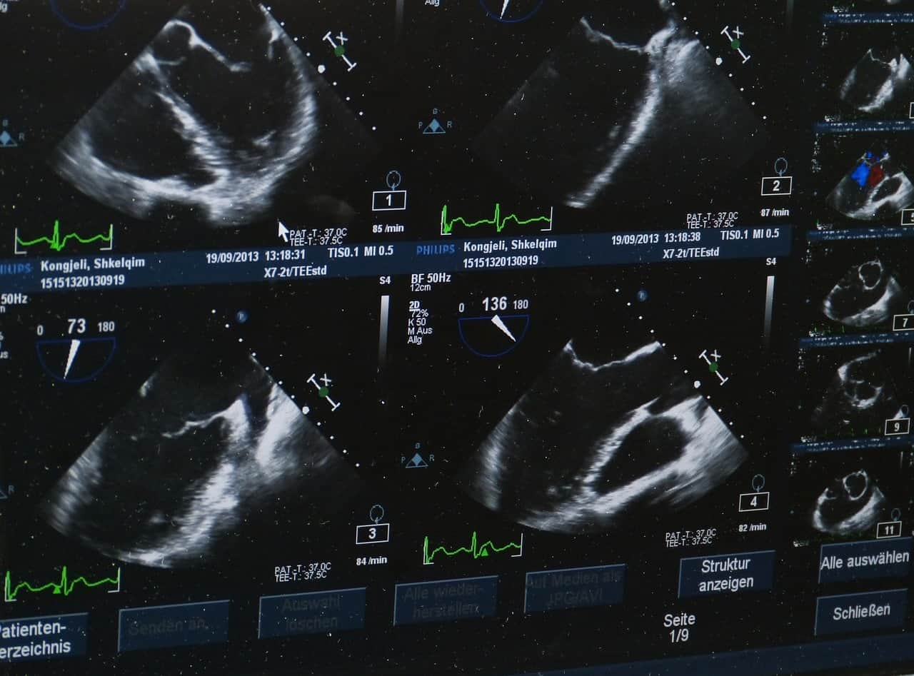 Ultrasound images